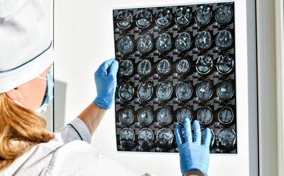 Neurofisiopatologia